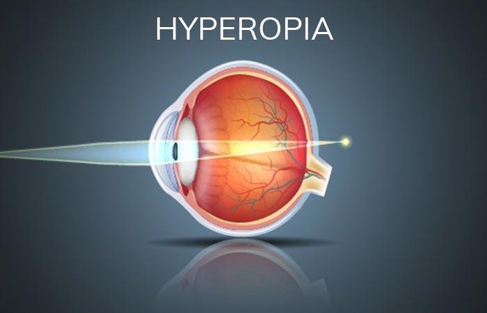 Hyperopia Refractive Error