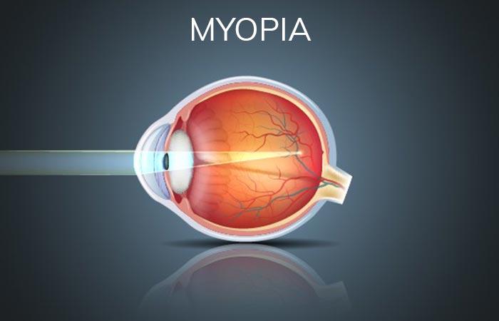 Myopia Refractive Error