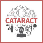 cataract surgery floaters houston