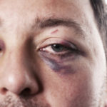guy with black eye looking into camera