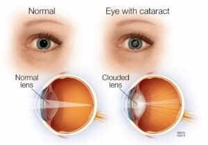 diagrams of cataracts
