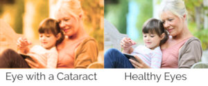difference in vision with cataracts vs no cataracts