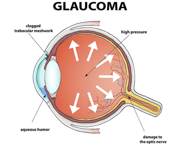 diagram of glaucoma