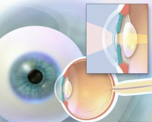 Diagram of eye ball