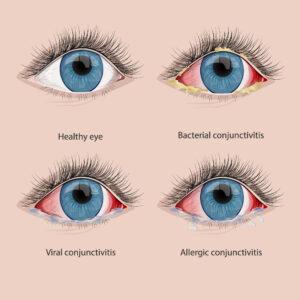 diagram of pink eye