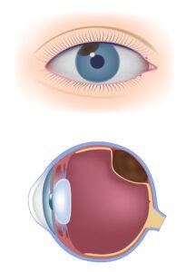 melanoma in eyes